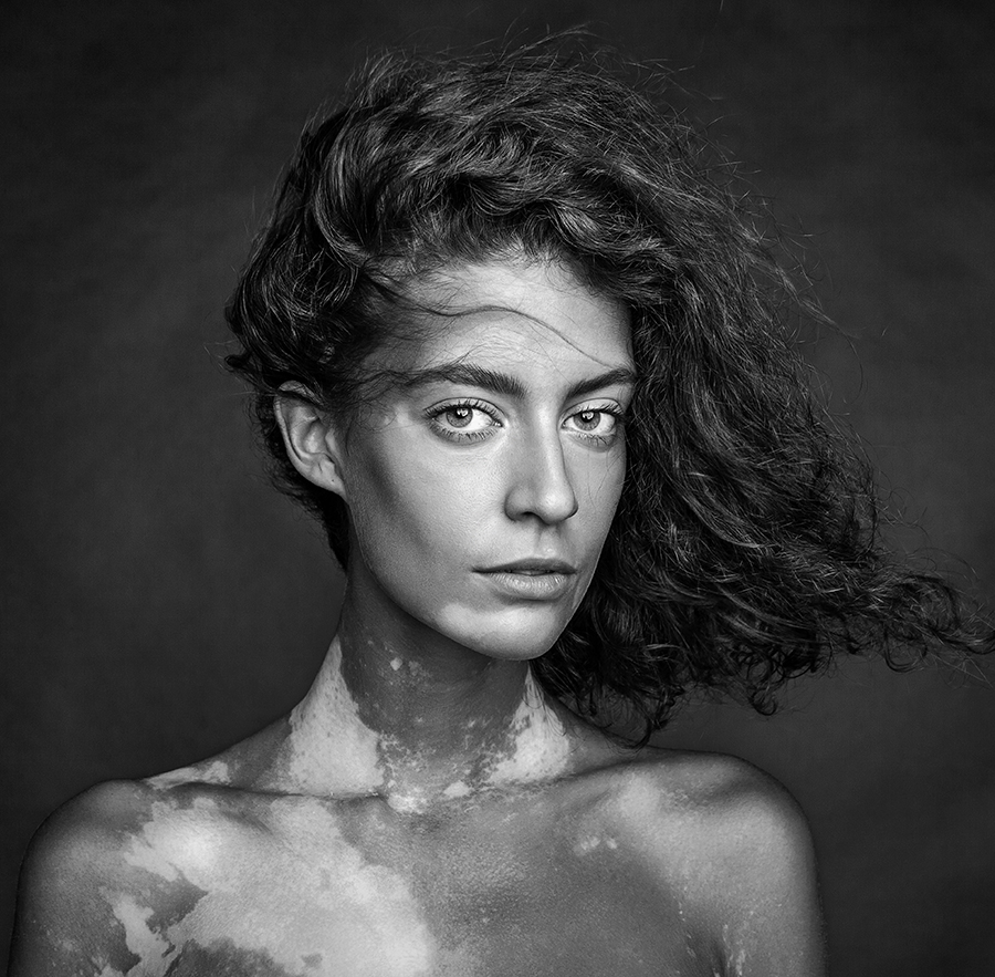 Girl with vitiligo by Mikhail Shestakov (Russian Federation) – 1st Place Winner – People Discovery of the Year 2016