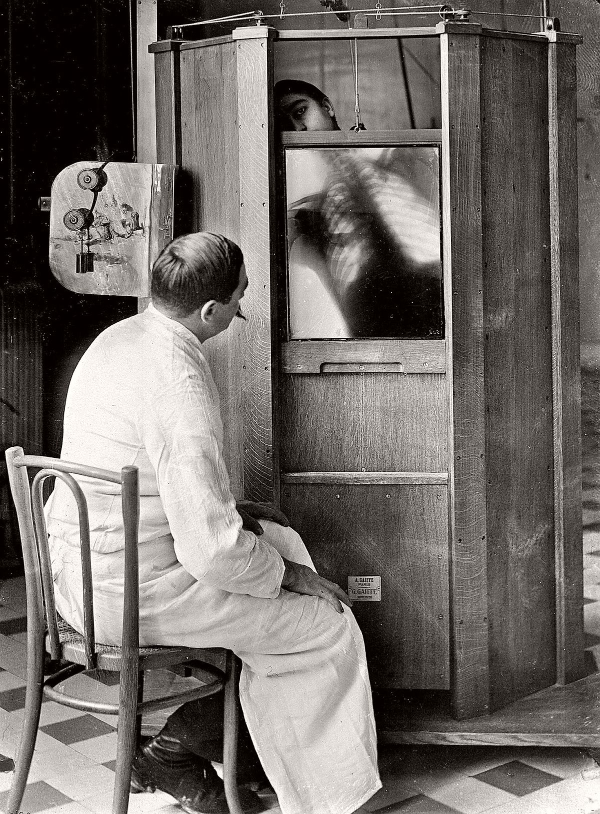 A chest X-ray in progress at Professor Menard's radiology department at the Cochin hospital, Paris, 1914. (Jacques Boyer/Roger Viollet—Getty Images)