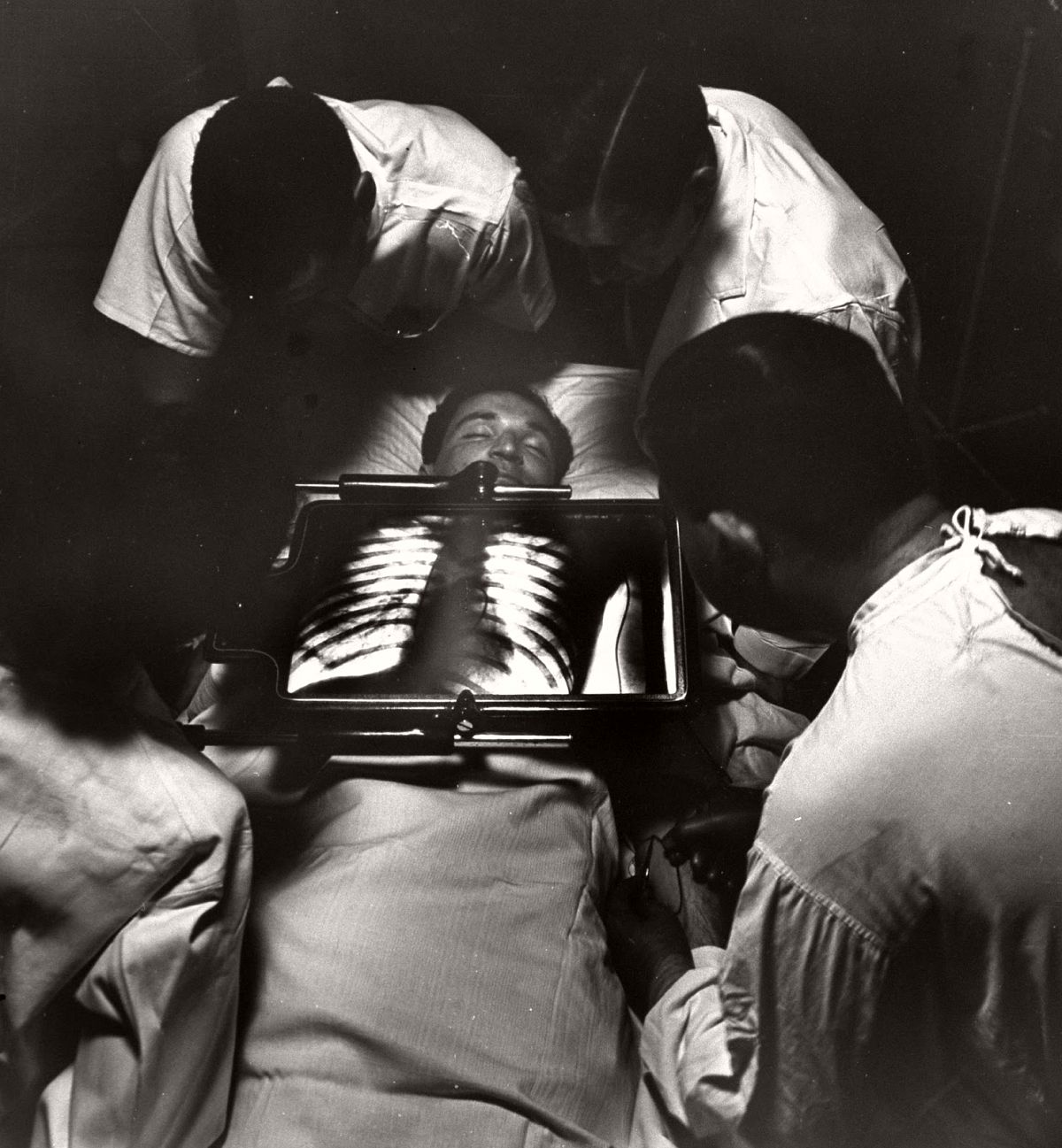 Doctors using x-ray machine to feed venous catherter into patient's heart, 1947. (Al Fenn—The LIFE Picture Collection/Getty Images)