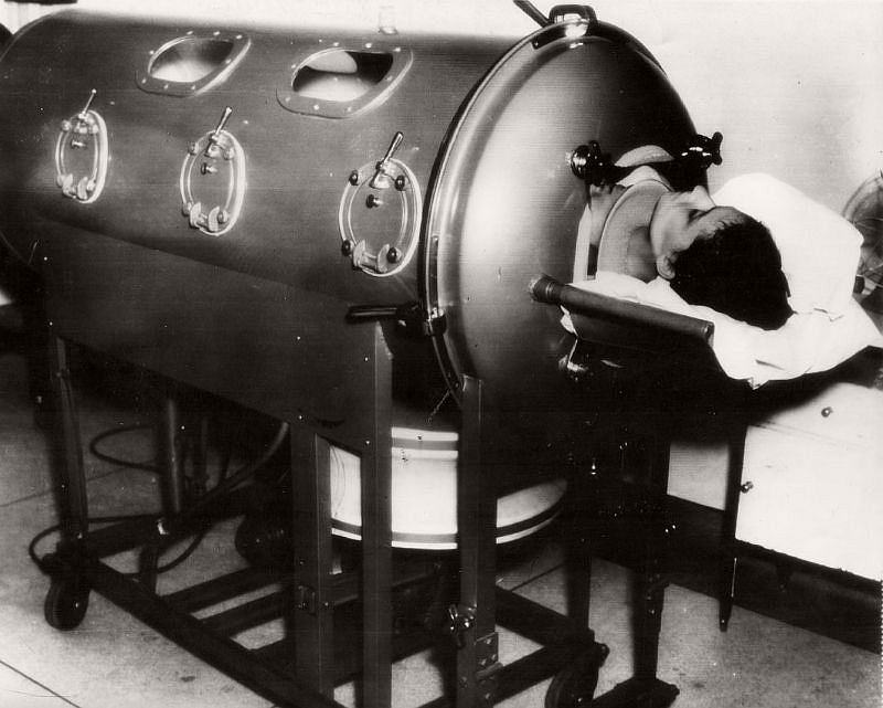 "In this 1938 photo from Alton Illinois, the caption states ""An 18 year-old bride with infantile paralysis, Mrs. Myra Rothe is kept alive by an iron lung at St. Joseph's Hospital here. Physicians gave her a fighting chance to recover."""