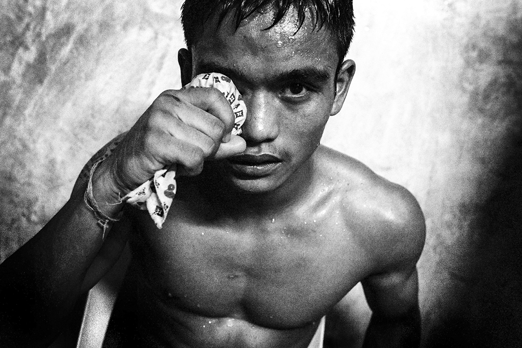 A fighter holds an ice cloth to his eye after a blow to the face at the Chiang Mai Boxing Stadium. Defeat is often accompanied with bruising. It is not uncommon for figters to go into matches with existing injuries.