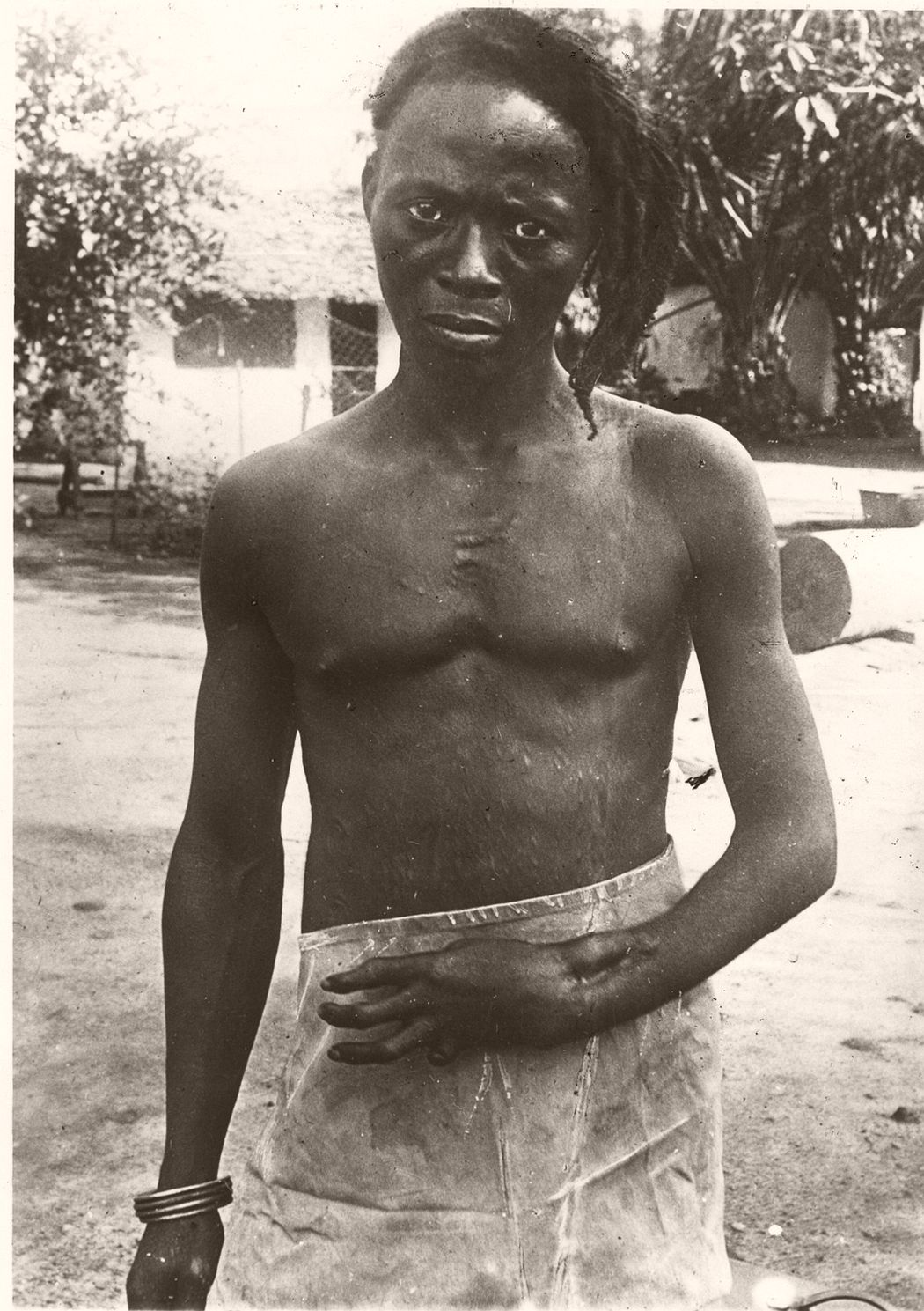 Lomboto shot in wrist and hand by a rubber concession sentry and permanently disabled as a result, early 1900s copy. Copyright Anti-Slavery International and Autograph ABP.